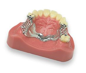 cap prothesiste dentaire mulhouse Titulaire d'un autre cap ou bep   l'affectation en seconde baccalauréat prothèse dentaire relève d'une procédure spécifique, complémentaire de la .